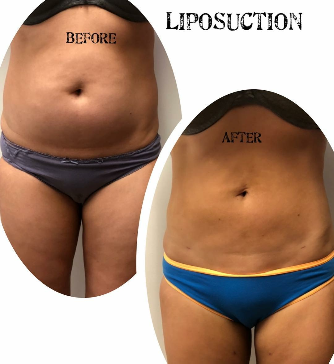 liposuction brisbane and Gold Coast