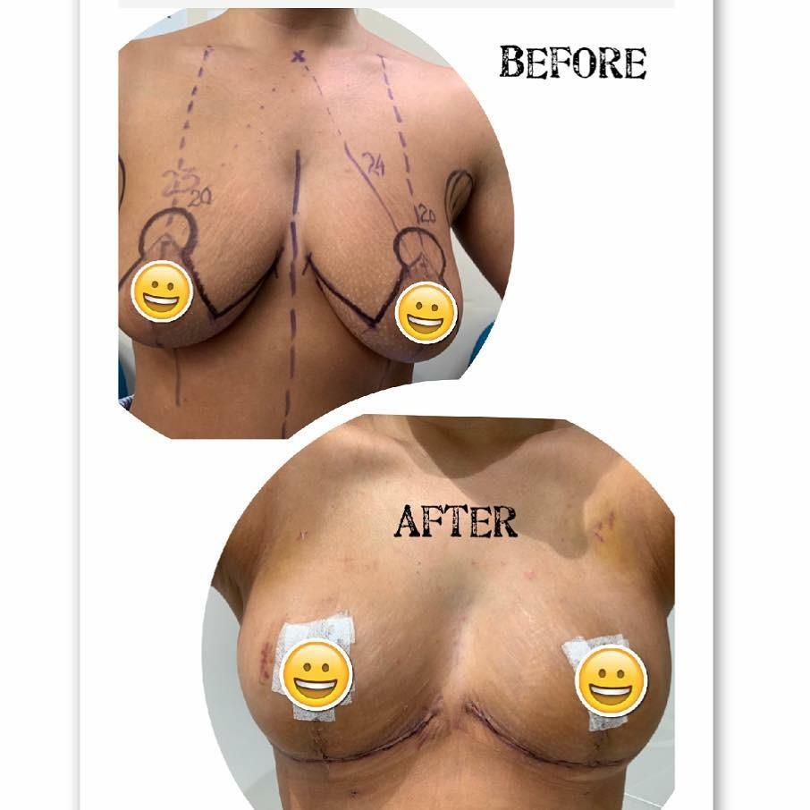 nipple reduction surgery brisbane