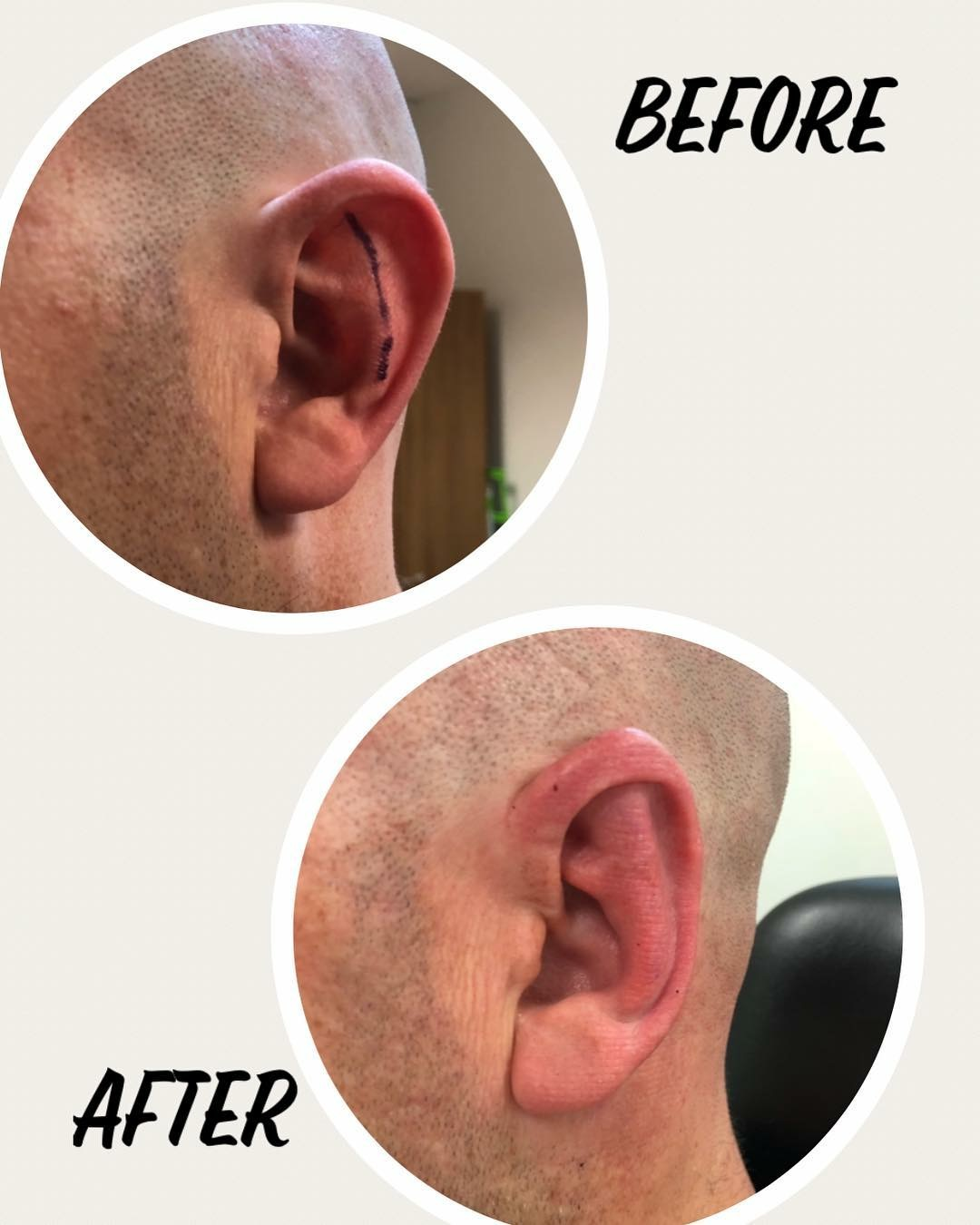ear lobe repair brisbane