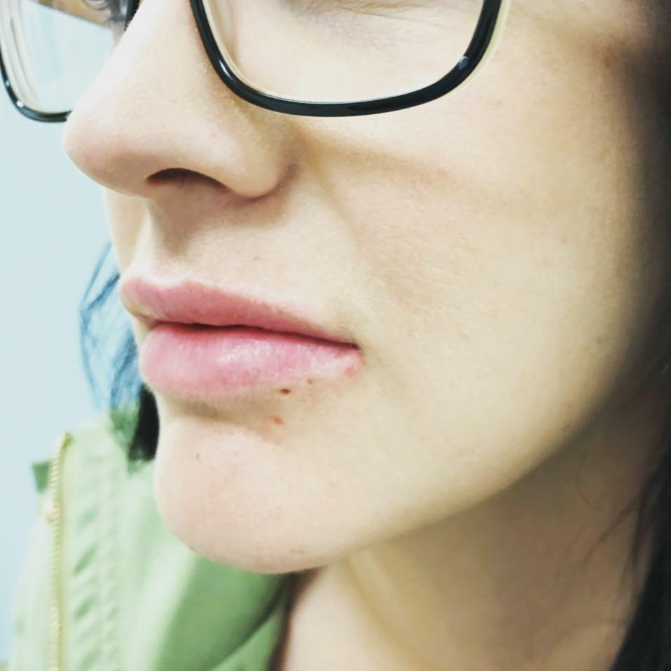 lip fillers brisbane