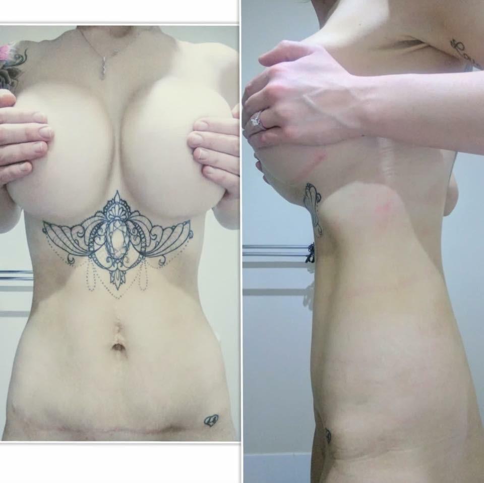 breast lift prices brisbane