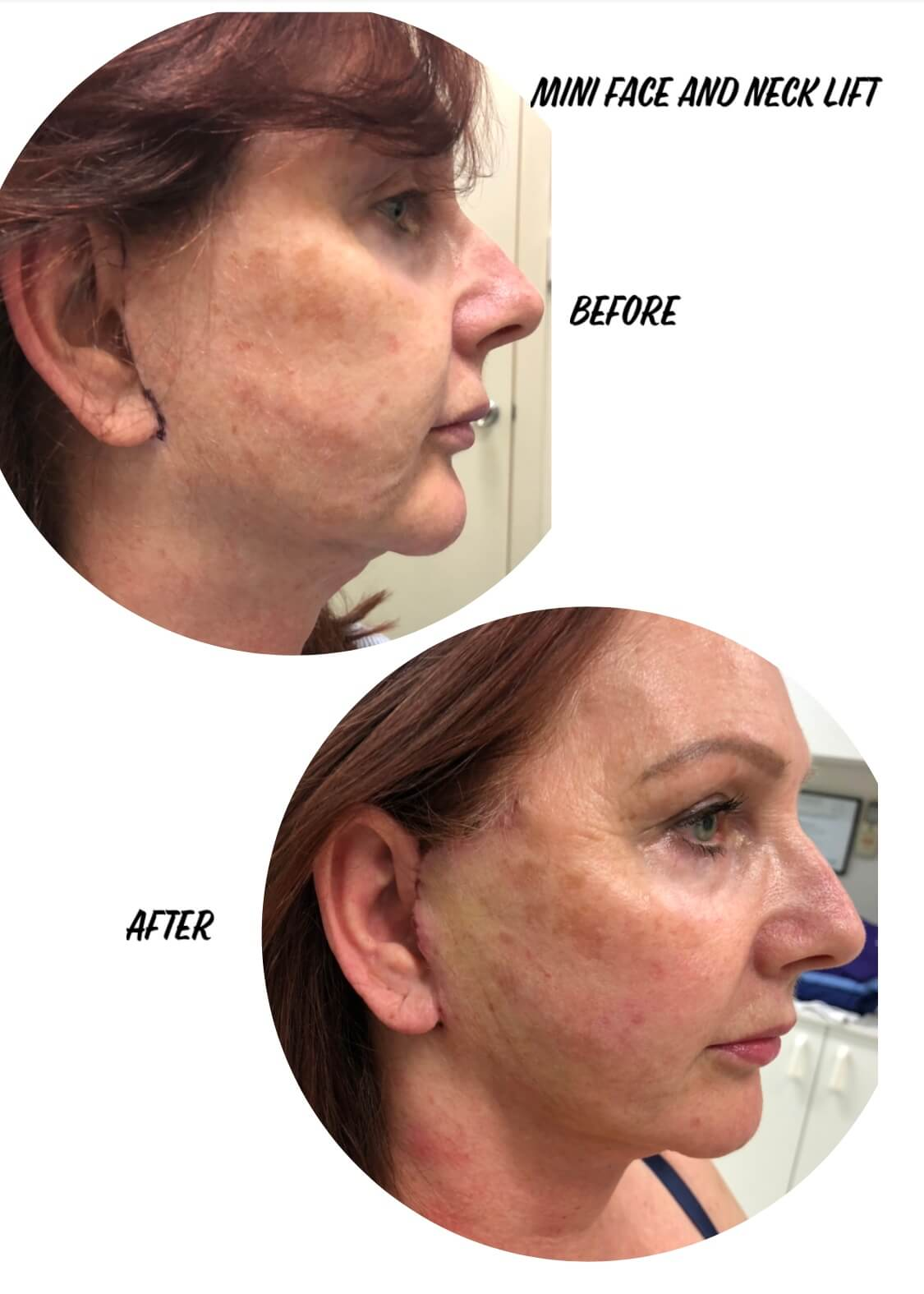 Before and after image of mini face lift and neck lift surgery