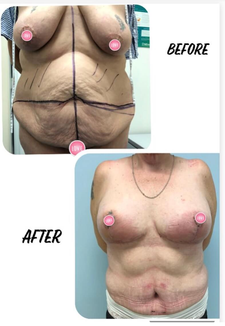 Before and after image of a woman after mummy makeover procedure